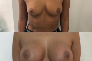 https://dottgallofficial.aplusitalia.com/wp-content/uploads/2020/06/Dottor-Gallo-Mastoplastica-additiva-Clinica-Medical-Group-5-300x200.jpg